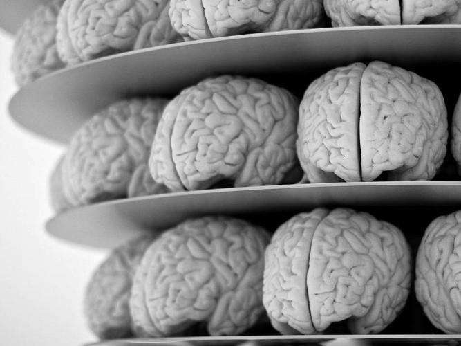 Técnicos em Implantes neurológicos